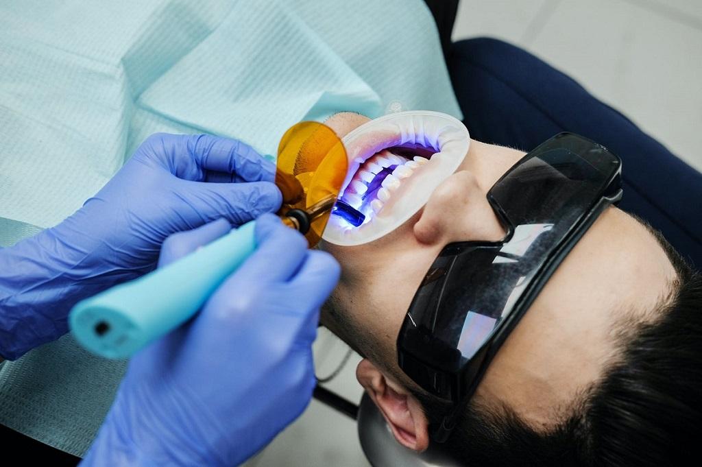 Factorii care influențează gradul de albire a dinților